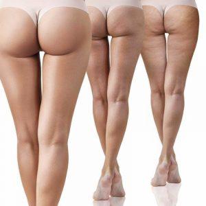 Cellulite mehrere Ausprägungen