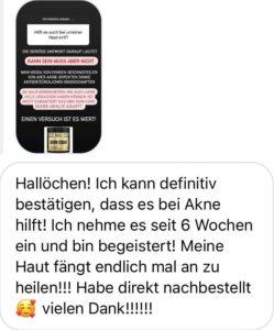 HBN SKIN CARE Feedback Akne