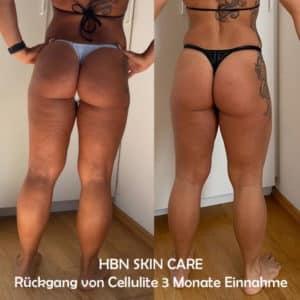 HBN SKIN CARE Cellulite