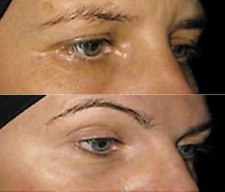 Kollagenpeptide Augenfalten
