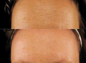 Kollagenpeptide Stirnfalten